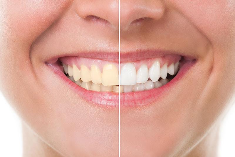 Teeth Whitening in West Jordan
